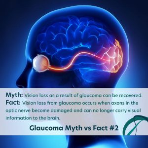Glaucoma Facts vs Myths Number 2