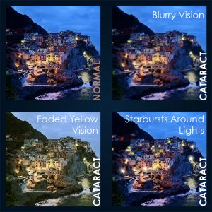 Types of vision with Cataracts