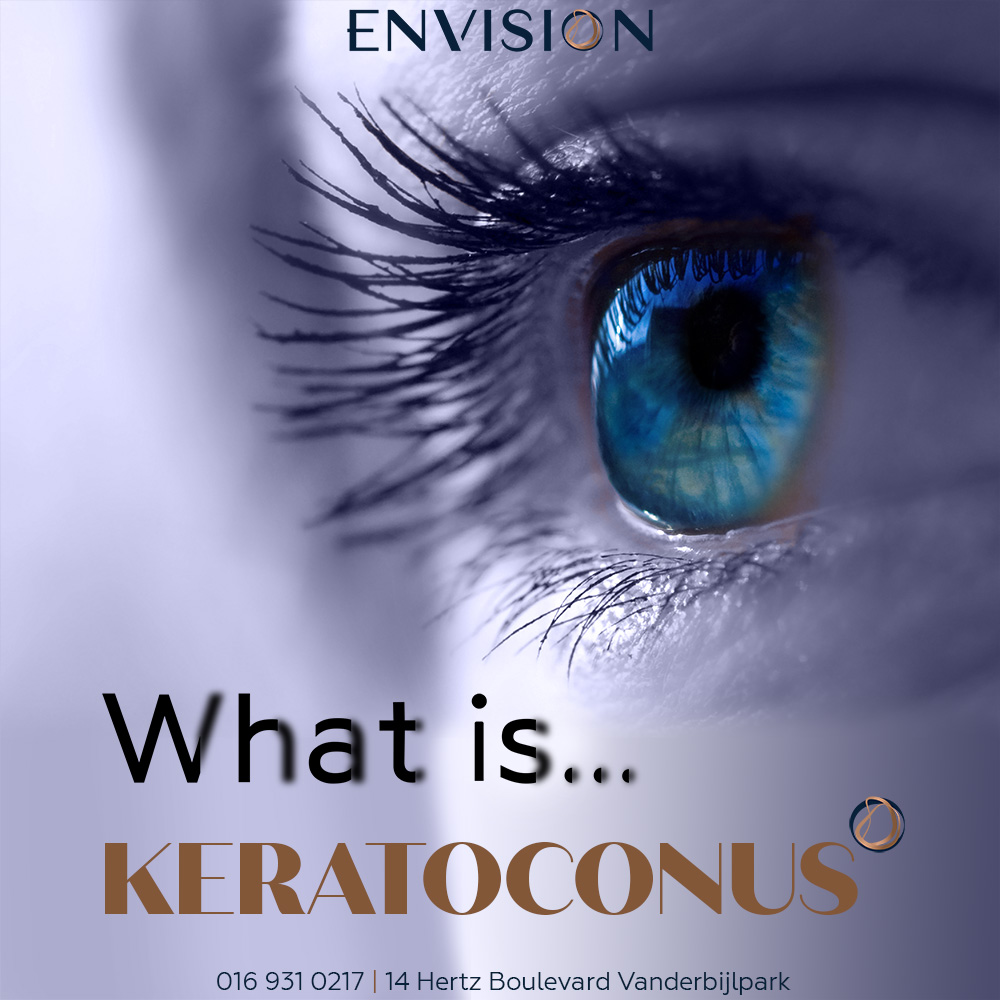 More about what is Keratoconus?
